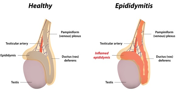 Testicular-Function-Problems-and-Treatments-epididymis